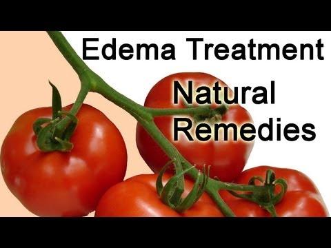 Video Edema Treatment tips - Edema Treatment Natural Remedies