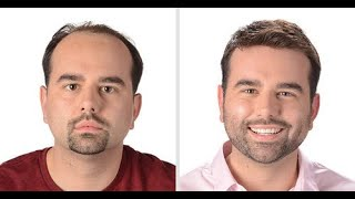 Reasons - Do Not Get A Hair Transplant , Should I get a hair transplant ??
