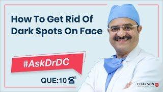 Get Rid Of Dark Spots On Face(चेहरे के काले धब्बों से छुटकारा पाएं)| #AskDrDc Ep 10 | (In HINDI)