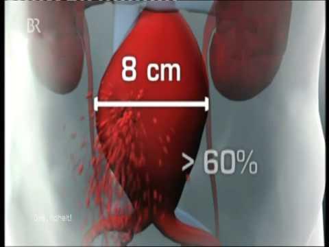 MRT der Halswirbelsäule in Bildern