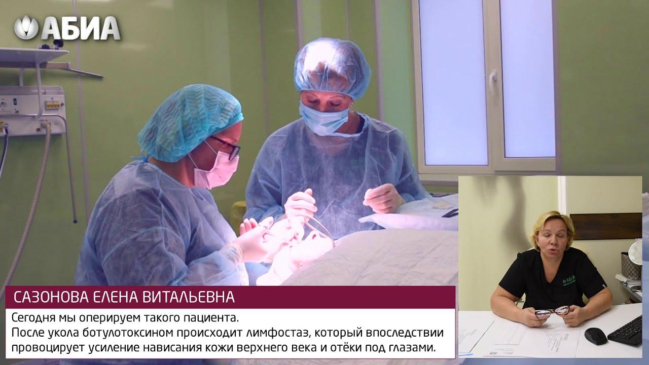 Блефаропластика и ботулинотерапия. Пластический хирург Сазонова Е.В.