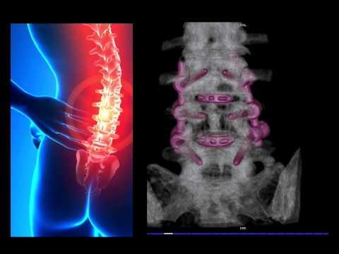 Der ganze Rücken tut auf 37 Woche der Schwangerschaft weh
