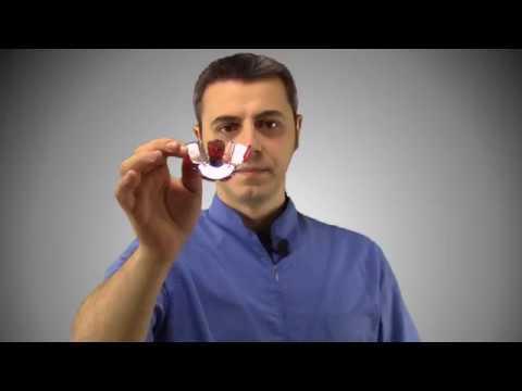 Come togliere prodotti di disintegrazione di vermi