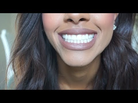 My Dental Implant Surgery Experience: PART ONE   My Story + Tips For You!   Mariah Navit