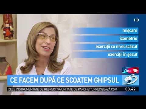 Boli sistemice de țesut conjunctiv la femei