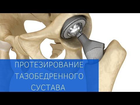 Протезирование тазобедренного сустава, программа реабилитации