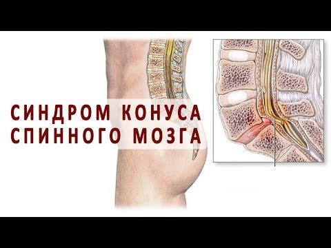 Артрит детский коленного сустава
