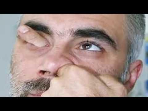 Ellenbogen Bursitis, dass dies ein Foto