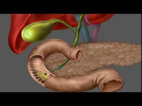 Hogyan lehet eltávolítani a férgeket a testből