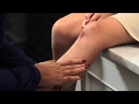 Video Proper wound care: How to minimize a scar