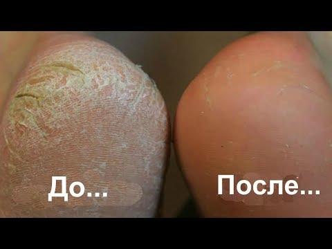 Способы выведения пигментных пятен на лице