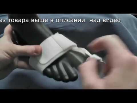 Лечение шишки на большом пальце