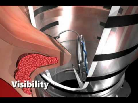 Ultraprokt listruzione per applicazione a emorroidi