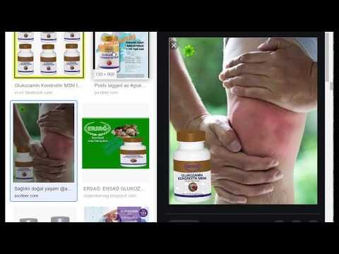 Hogyan lehet kezelni a hüvelykujj ízületének fájdalmát