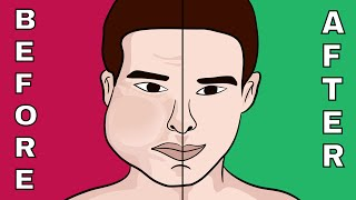 The 7 Fastest Techniques to Burn Face Fat Naturally!