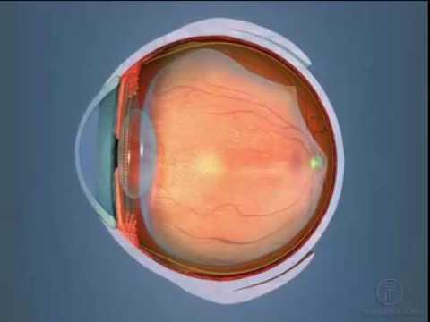 Нарушение зрения у детей близорукость