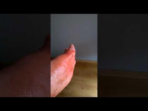 Co deformacja koślawego z pierwszych palcach