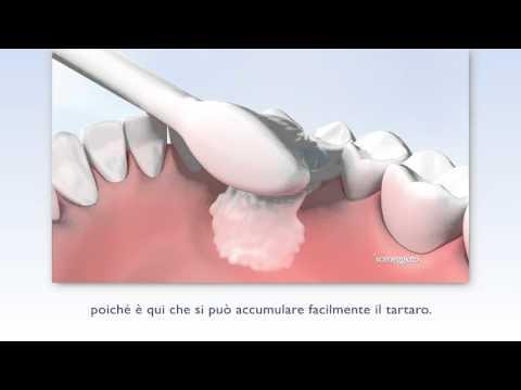 Philips Sonicare DiamondClean: lo spazzolino elettrico sonico