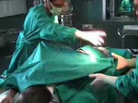 Artrosi deformata dellarticolazione della spalla