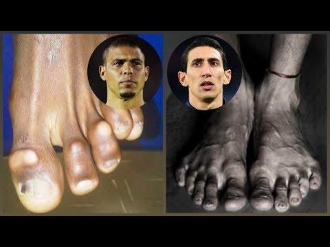 Fait mal fortement le pied de la veine que faire