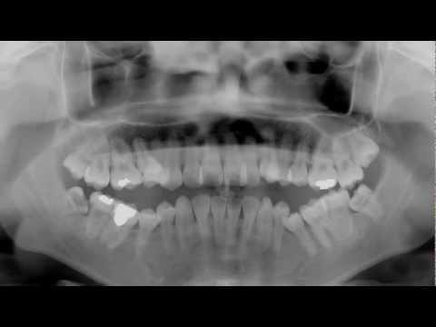 Los Angeles Emergency Dentist