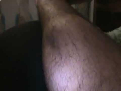 Le traitement de la varice variqueuse à mogil±ve