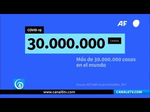 Contagios por coronavirus superan los 30 millones en el mundo