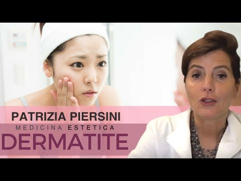 Incrinature su mani allatto di cura di eczema