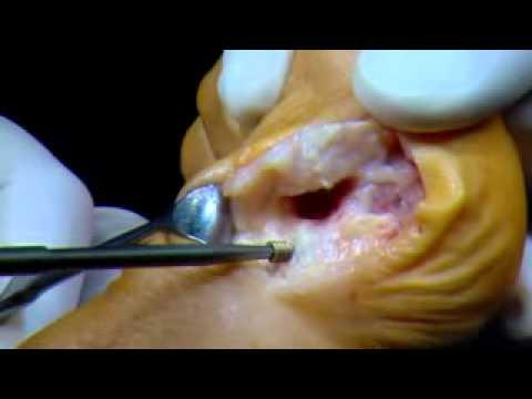Stan zapalny kości w stopie w palucha bolesnym kroku