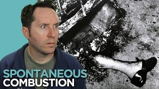 Spontaneous Human Combustion – Could You Burst Into Flames?