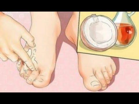 Typy stłuczki na stopach