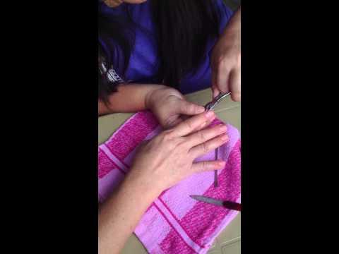Halamang-singaw sa kanyang mga paa sintomas paggamot ng katutubong remedyong
