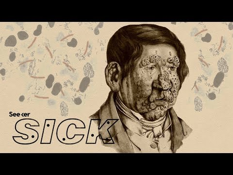 How Does Leprosy Damage the Human Body?