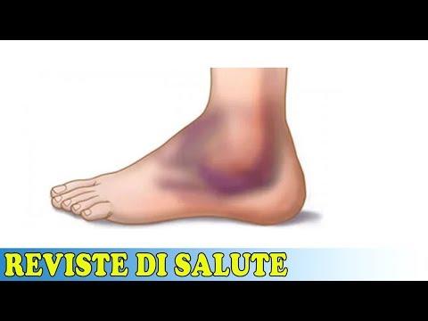 Legamenti della caviglia di cosa si tratta