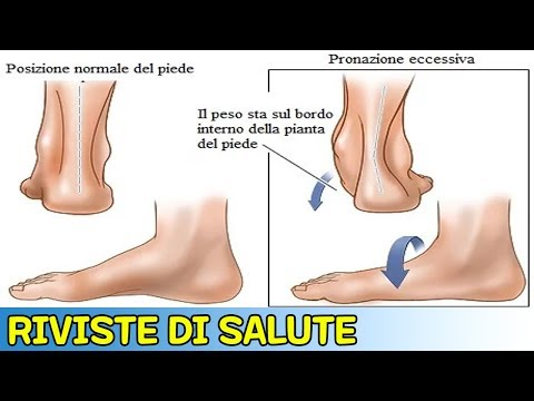 Joint sottosviluppato