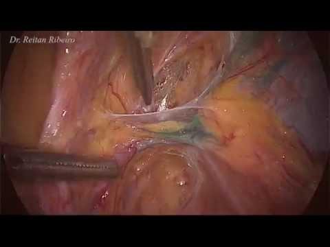 Laparoscopic staging for endometrial carcinoma (Part 1 of 2)