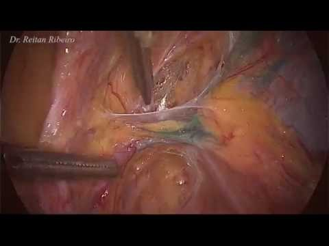 Papilloma genitale