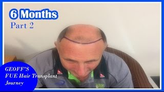 FUE Hair Transplant - Geoff's Journey - hair loss treatment for men / stop going bald - 6 months [2]