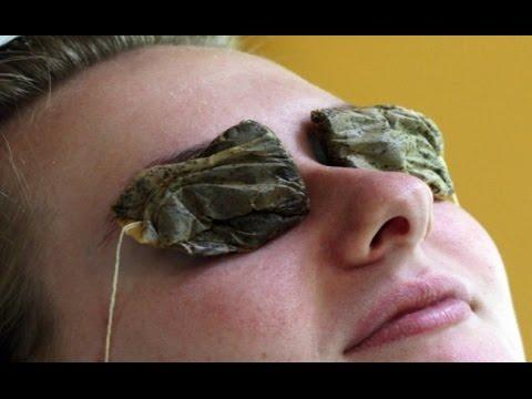 Video Cara mengatasi mata bengkak bintitan