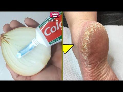 Pielea mâncărime pe picioarele varicoasei