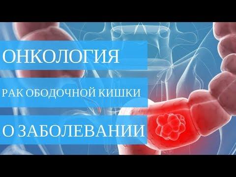 Рак ободочной кишки. О заболевании - фото 1
