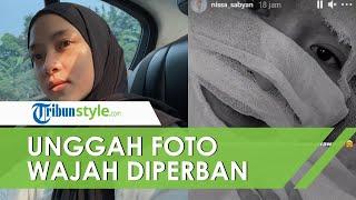 Nissa Sabyan Unggah Foto Seluruh Wajah Dibalut Perban, Ada Apa dengan Dia