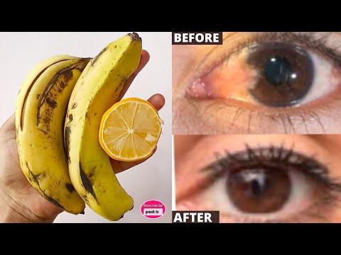 100 százalékos látóasztal jó vitaminok a látáslátás javítására