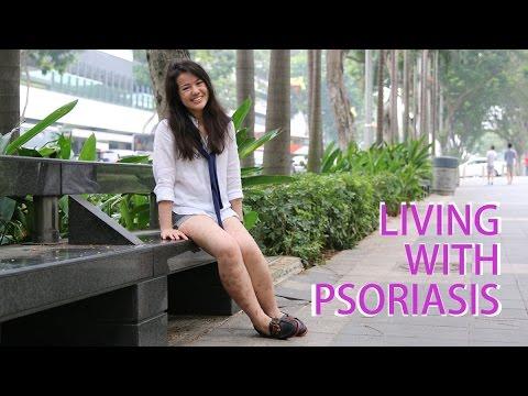 Le moyen efficace pour les coudes au psoriasis