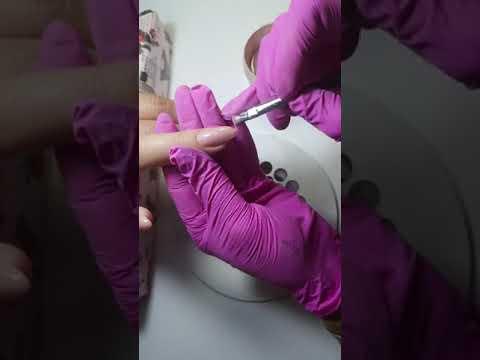 Artrita tratamentul prognostic al articulației genunchiului