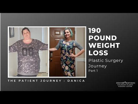 Plastic Surgery After Weight Loss, Colorado Plastic Surgery