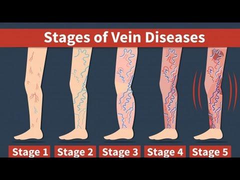 Malattie della caviglia di estremità più bassa