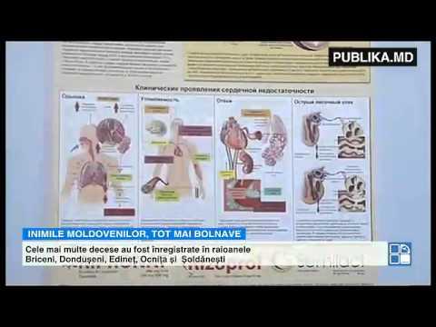 Istoricul medical al hipertensiunii arteriale esențiale de grad 2
