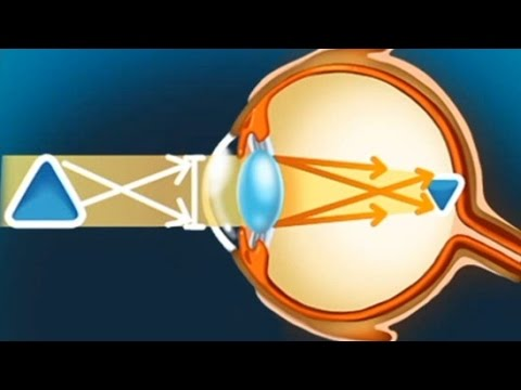 Коломна лазерная коррекция зрения