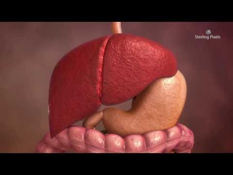 Ascaris lokalizáció az emberi testben